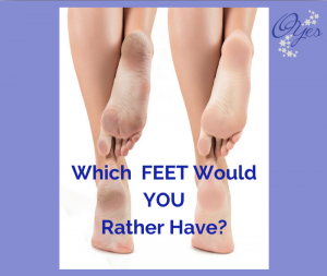 Choose which feet - O Yes Wins
